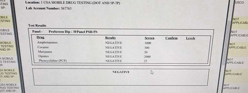 10 panel drug test results